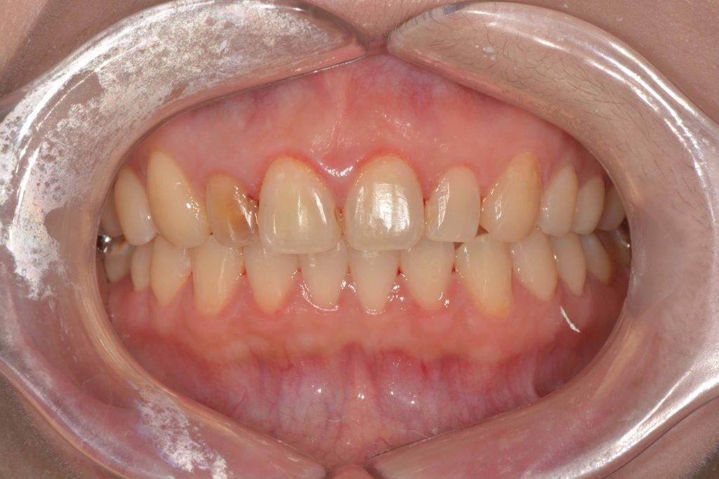 右側門牙因之前做根管治療,而變色變暗