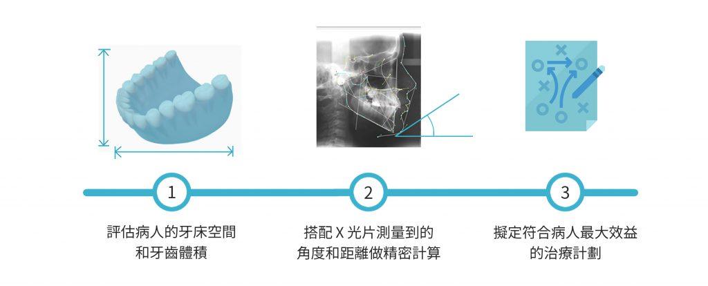 新竹牙齒矯正 牙床空間和牙齒體積