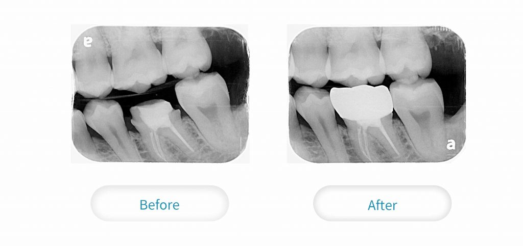 根管治療過後的牙齒,相較脆弱,需做一層牙套保護起來