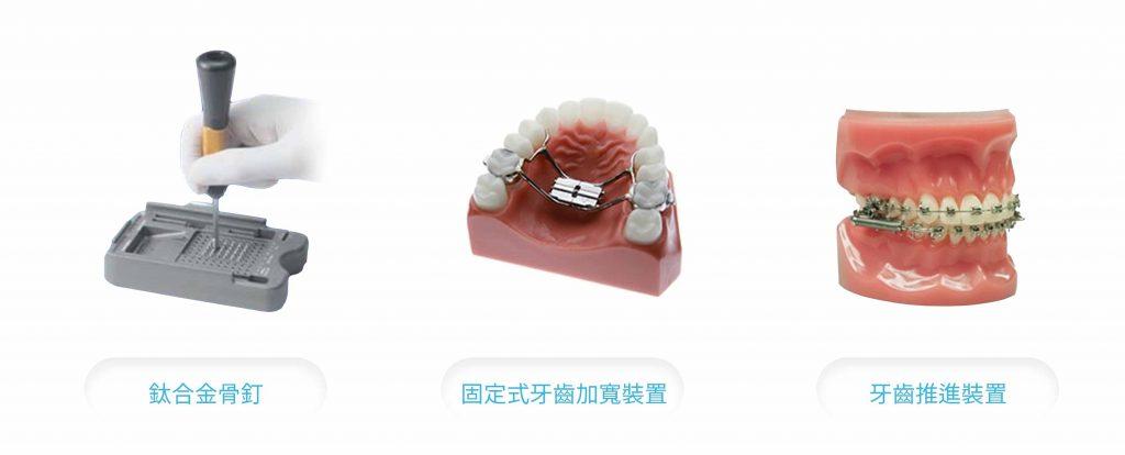 新竹牙齒矯正 矯正費用