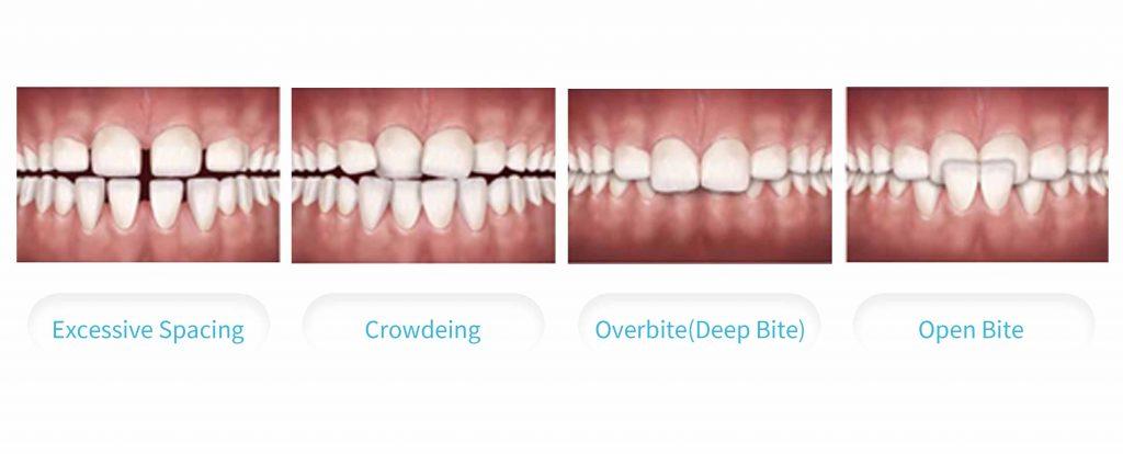 新竹牙齒矯正 什麼情況下需要矯正