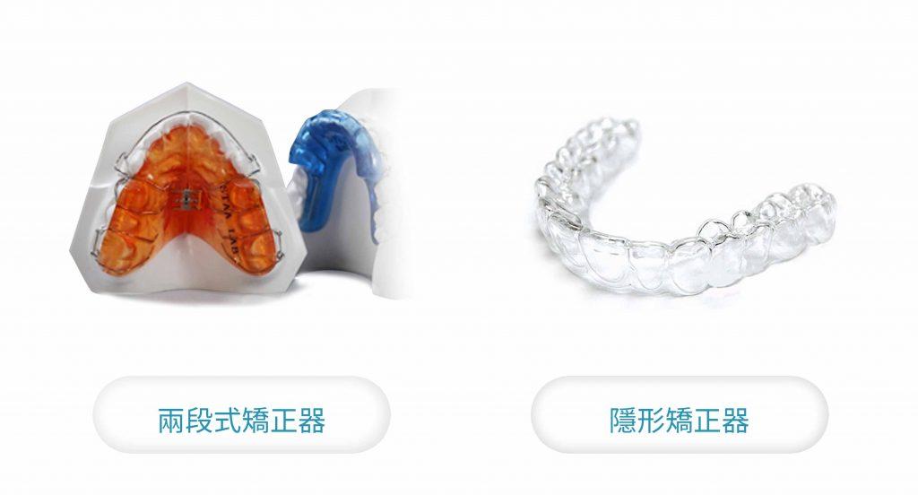 牙齒矯正 適合傳統矯正還是隱形矯正