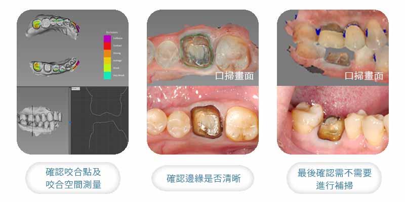 全瓷冠假牙製作,數位口掃的流程