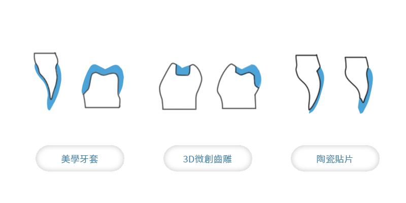 假牙推薦 3D 微創齒雕