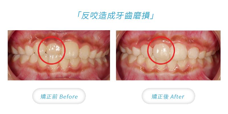 兒童矯正時機,反咬造成牙齒磨損