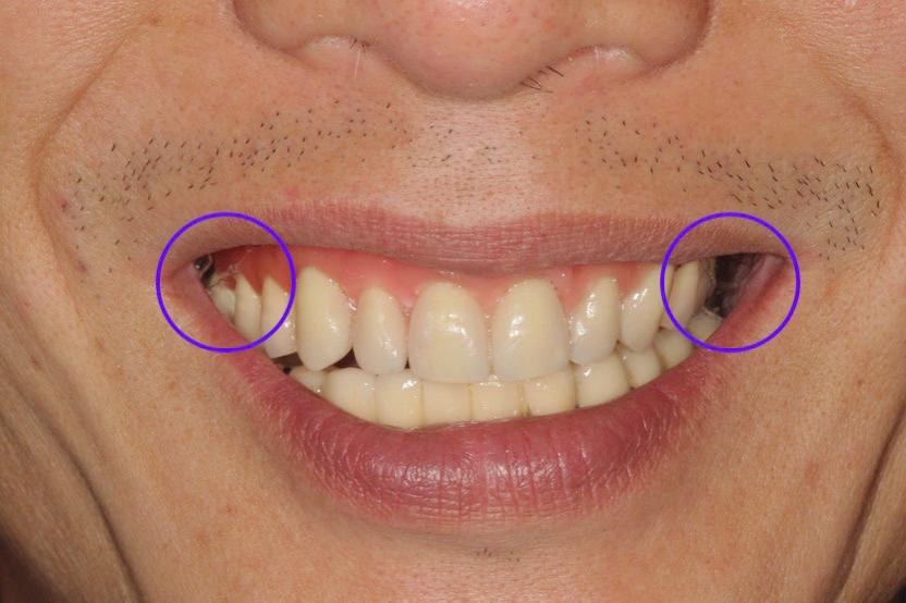全口植牙 頰廊區為微笑時嘴角兩側與牙齒間形成的空隙