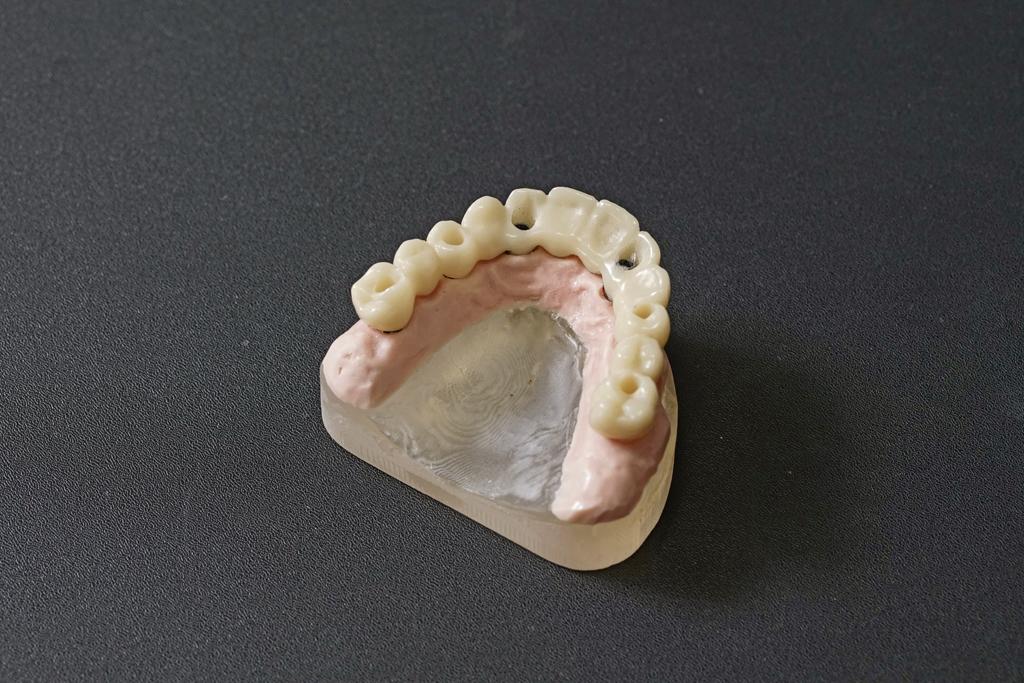 導引式植牙