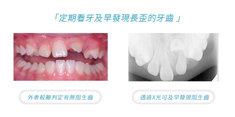 10 歲的王小妹,左上正中門牙仍未長出,X 光顯示阻生的門牙