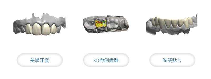 假牙推薦 數位掃描、設計假牙