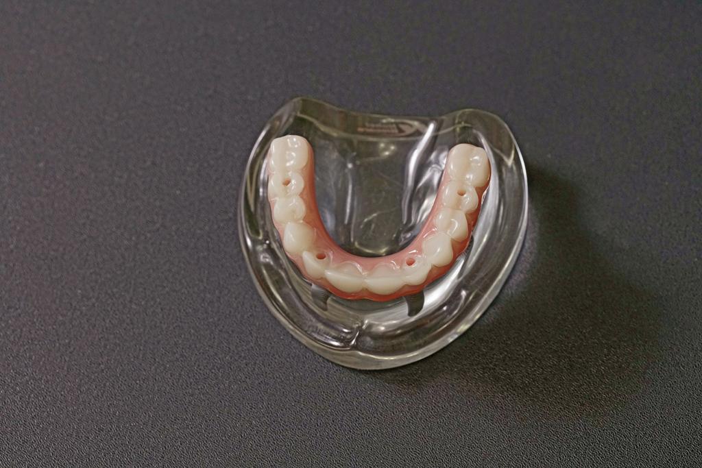 All-on-4 全口重建植牙假牙模型