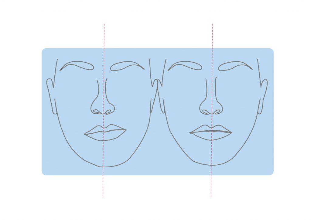 缺牙可能變形臉變形歪斜