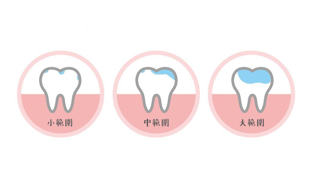 蛀牙的範圍