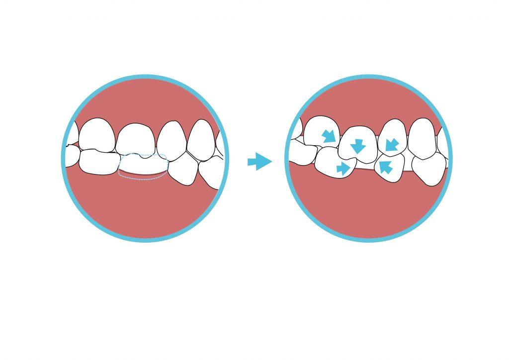 缺牙不處理,會導致鄰牙位移