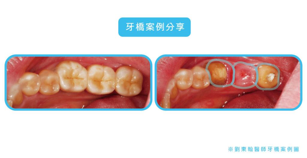 劉東翰醫師的牙橋案例