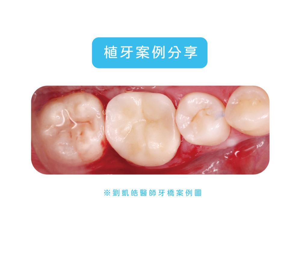 劉凱皓醫師的牙橋案例