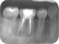 新竹根管治療,完成根管治療過後的牙齒