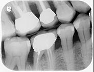 齒槽骨萎縮