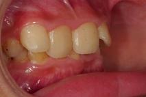 牙齒角度怪怪的