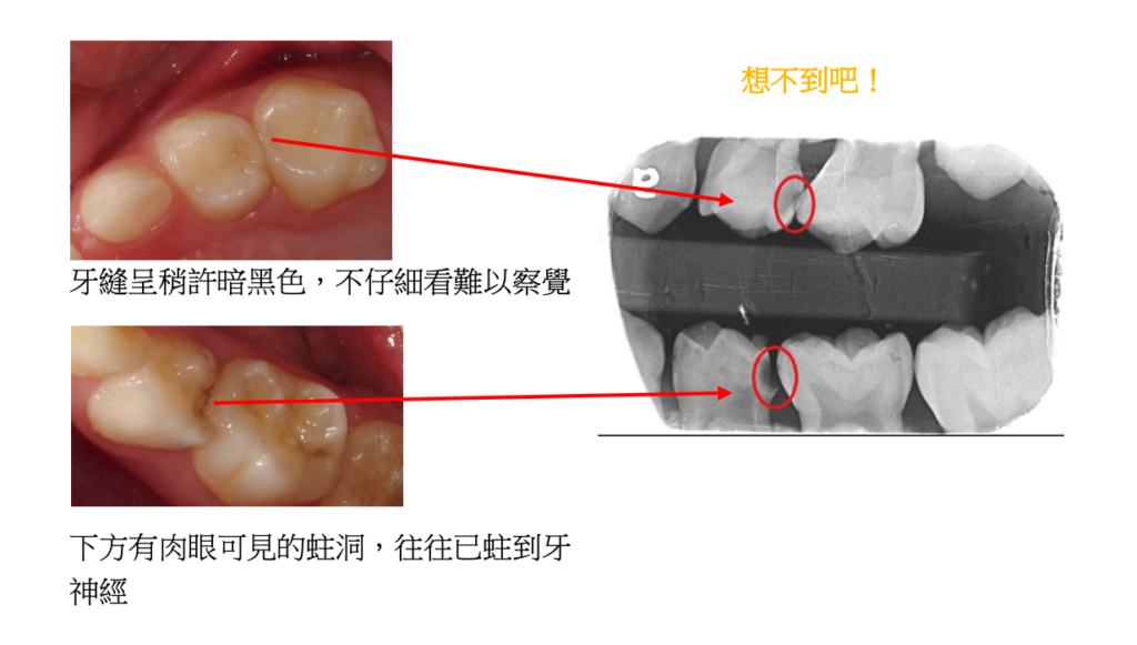 拍 X 光片後也發現上排也有蛀洞