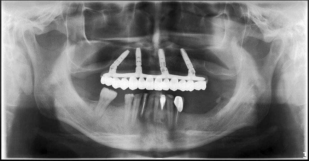 ao4全口植牙術後X光