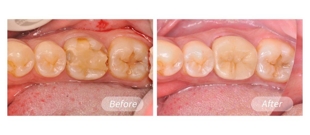 選擇齒雕補牙不易牙齒變色