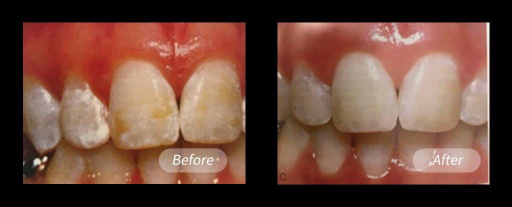 想要美白的患者上排牙齒有白斑和黃漬