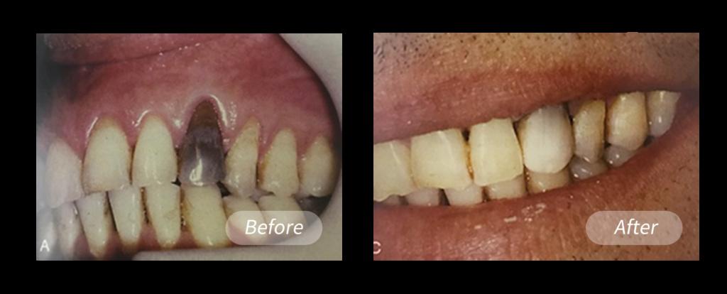 造成牙齒變色原因根管填充材料