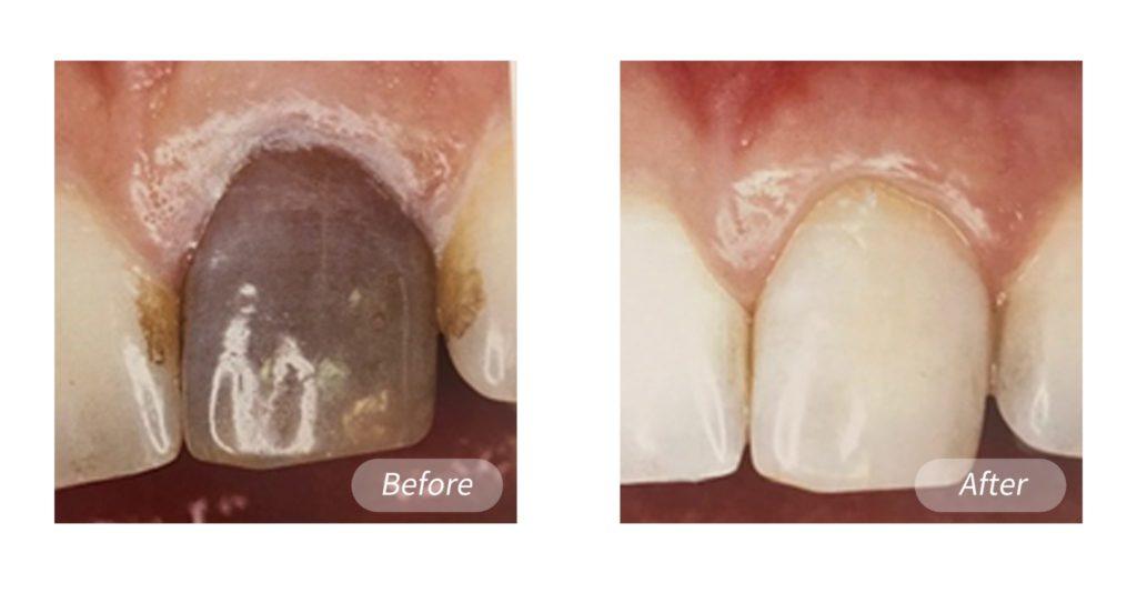 造成牙齒變色原因牙髓壞死