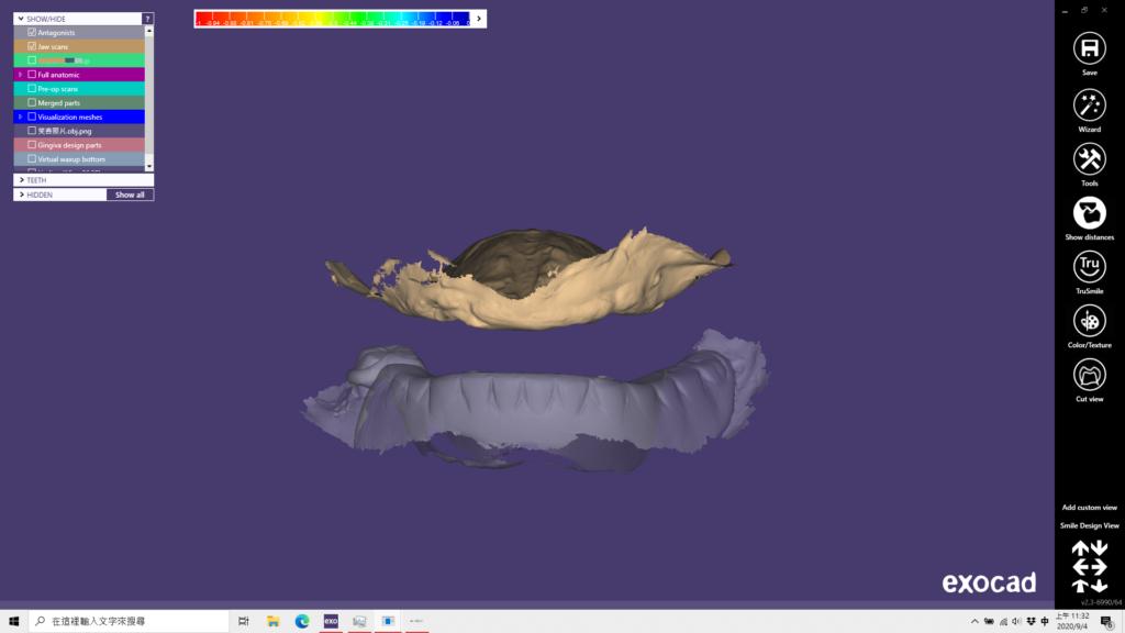 ao4用電腦軟體從口內無牙開始設計