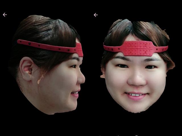 ao4 全口重建 3D掃描