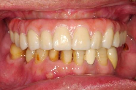 ao5全口植牙術後牢固美觀