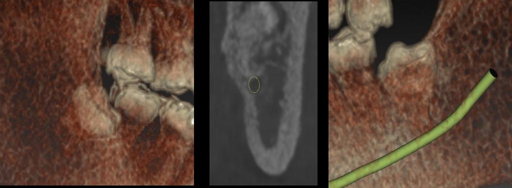 新竹植牙電腦斷層掃描