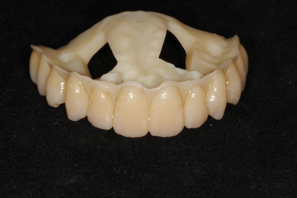 3D 立體列印ao4假牙