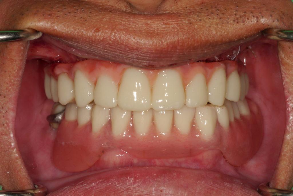 當日 植牙 手術完成裝戴ao4臨時假牙