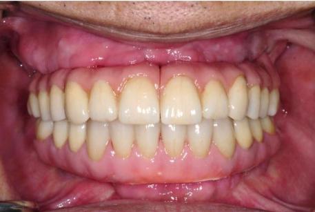 老人家ao4全口植牙術後牙齒健康美觀