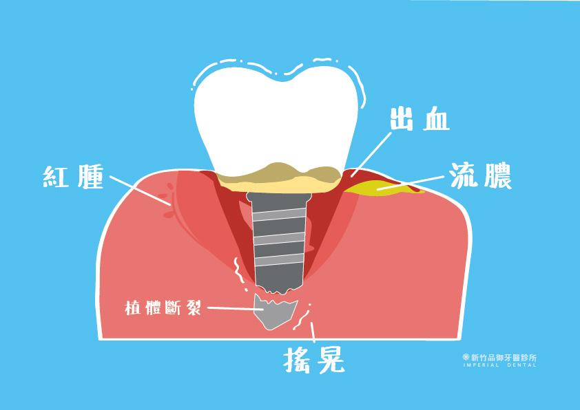 植體周圍炎讓植牙的牙齦紅腫出血