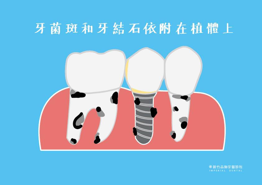 牙菌斑和牙結石依附在植牙的植體上