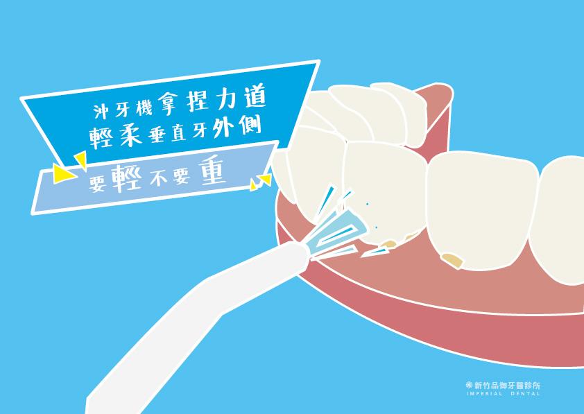 植牙後使用沖牙機時要拿捏力道