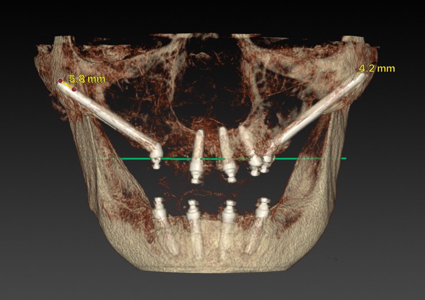 新竹植牙全口顴骨植體手術