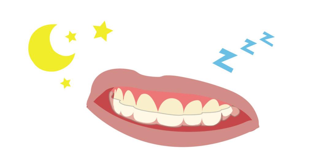 咬合板可以減少磨牙機率