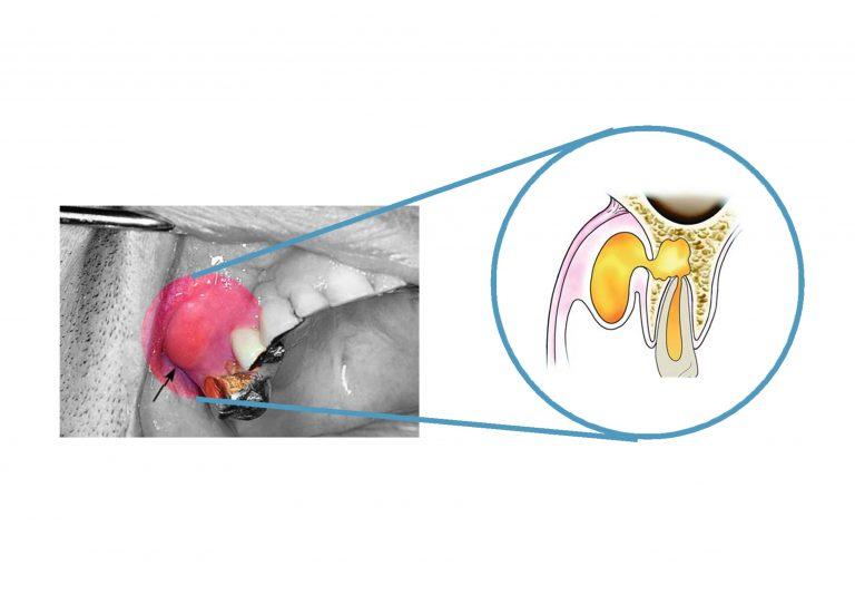 蜂窩性組織炎 前庭囊腫