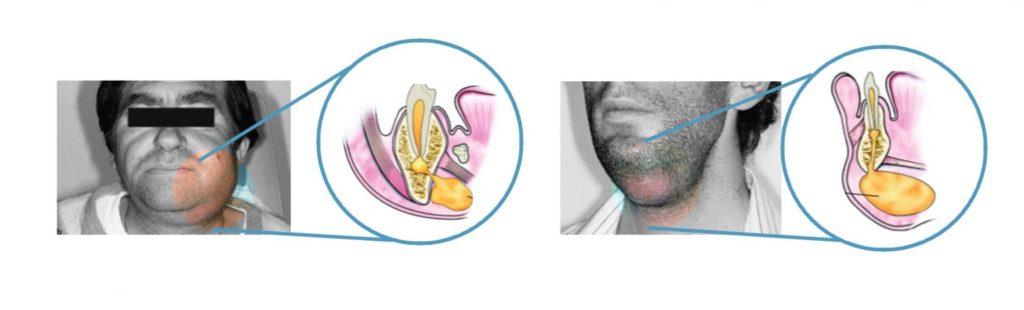 蜂窩性組織炎 下顎間隙和頷下間隙