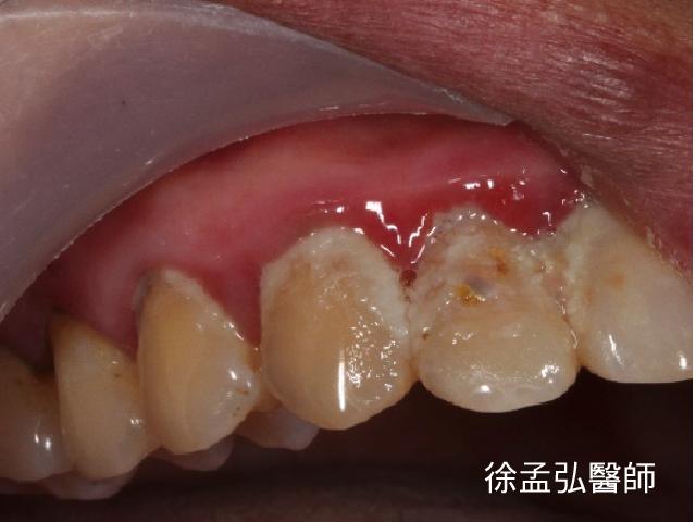 上排牙齦發炎