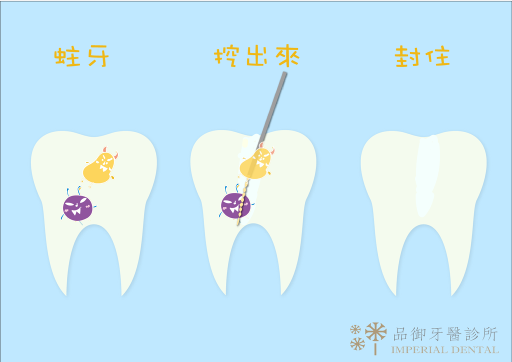 蛀牙根管治療