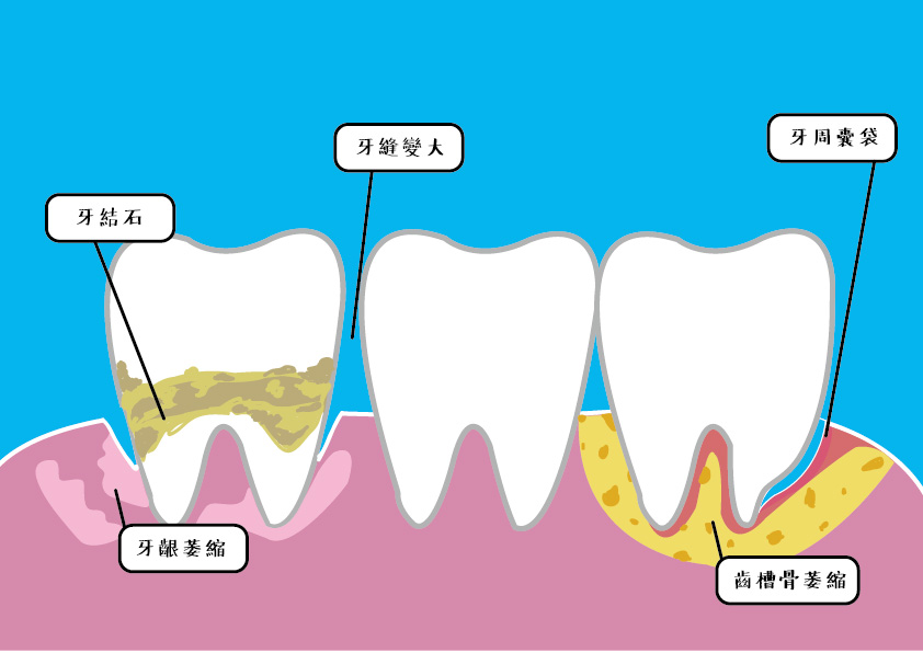 因為牙周病造成牙齦萎縮和牙周囊袋