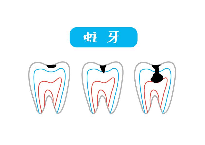 三顆牙齒分別展現不同蛀牙階段的侵蝕深度