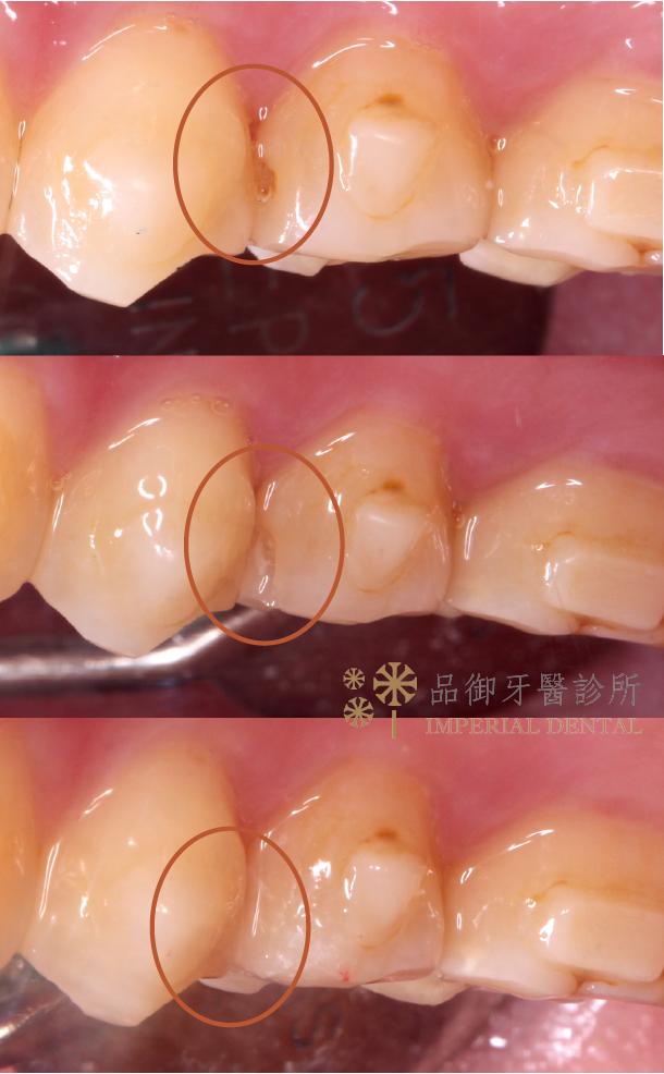 中度蛀牙補牙側面牙齒前後比較照片