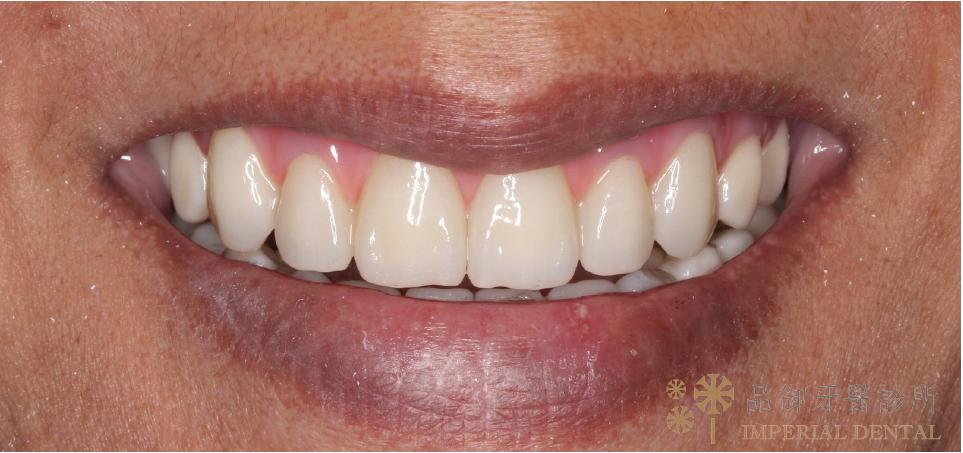 AO4植牙手術後正面笑容