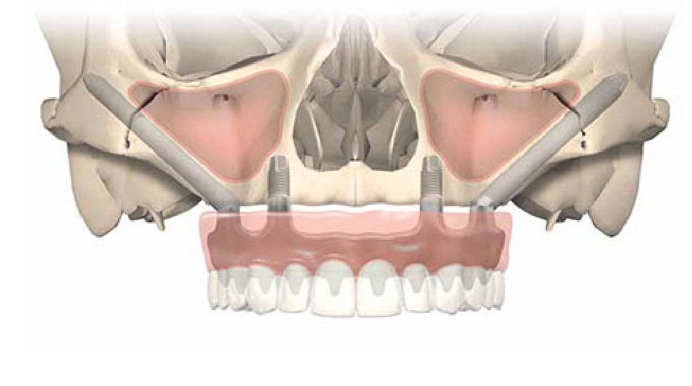 All--on-4 植牙搭配顴骨植體(Zygoma)頭顱透視圖