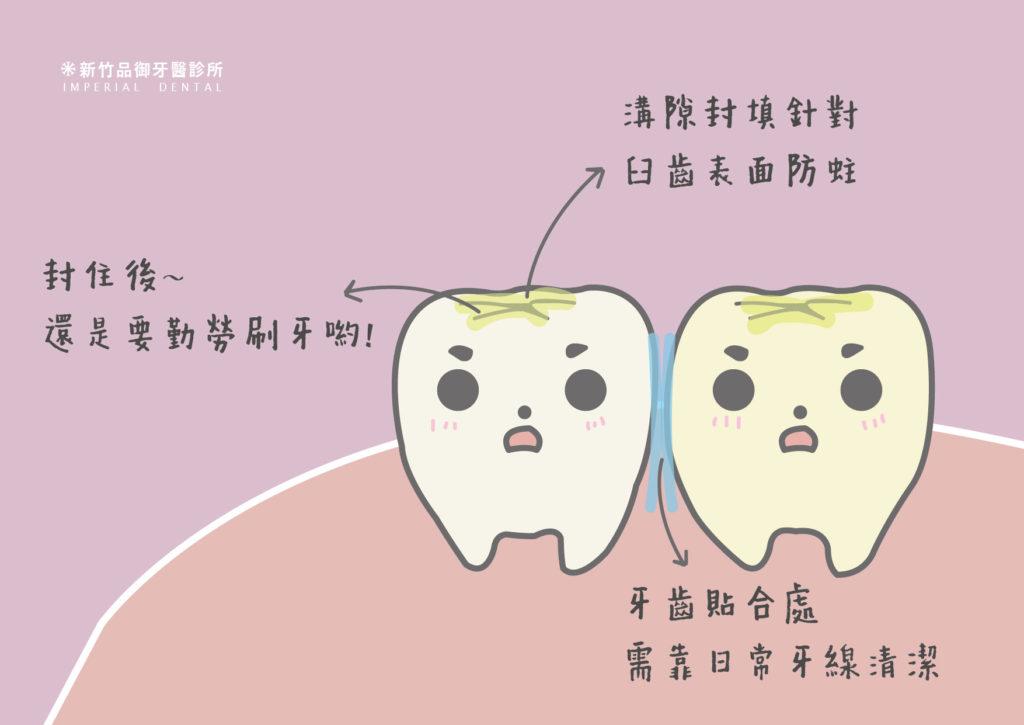 兩顆牙齒貼合面處蛀牙
